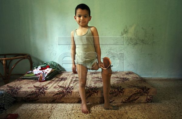 Palestinian Ahmed Abu Daken poses for photographs at his home in Gaza City, the Gaza Strip, 01 May 2010. His leg had to be amputated after he was hit by a car when leaving his kindergarten in December 2009. At the Artificial Limbs and Polio Center in the Gaza Strip, amputees can get prostheses fitted. They are also given physiotherapy at the clinic to train them to use the artificial limbs. Since the Israeli offensive of 2008-2009, the demand for these services has increased dramatically. As a result, the c